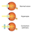 Hyperopia corrected by a plus lens vector image