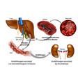 bilirubin metabolism vector image vector image